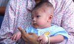 Bé trai bị đâm xuyên não nhập viện do viêm màng não mủ
