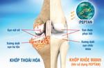 Hiểu biết mới về xương dưới sụn tại khớp thoái hóa