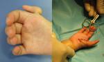 Dùng ngón tay trỏ để làm ngón tay cái cho bé gái