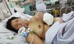 Người phụ nữ mang ngực 'to như quả dưa hấu' suốt 10 năm vì khối u