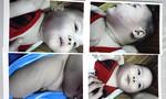 Bé trai nhập viện nghi bị đánh ở nhà trẻ