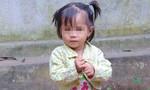 Xót thương bé gái 2 tuổi ở Đồng Tháp không có hậu môn