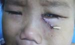 Té võng, bé trai 4 tuổi bị kim đâm thủng hốc mắt
