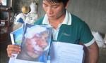 """Quản lý trại tôm suýt mất mạng  tại Bình Định: Do tai nạn hay bị đánh """"dằn mặt""""?"""