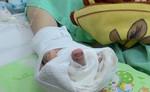 Xay thịt bò, một phụ nữ bị máy xay nghiền nát bàn tay