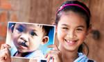 Mỗi năm cả nước có khoảng 3.000 trẻ mới sinh bị dị tật hở môi, hở hàm ếch
