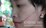 Nữ nhân viên bị khách dùng dao rạch mặt, cướp hàng