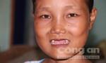 Thiếu nữ mang gương mặt 'bà già' và căn bệnh cuồng ăn uống quái lạ
