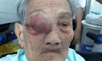 Mẹ Việt Nam anh hùng 101 tuổi vượt qua ca mổ u khủng ở hốc mắt