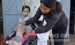 Bé gái 11 năm chống chọi với 'chân voi'
