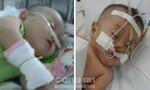 Xin cứu hai bé sinh đôi