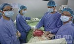 Phẫu thuật thành công khối u khổng lồ nặng gần 7 kg