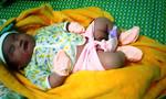 Một bé trai chào đời với cân nặng 5,1kg