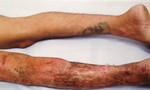 Nam thanh niên bị hoại tử chân trái sau 3 lần phẫu thuật