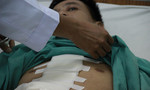 Sau chầu nhậu, nam thanh niên nhập viện cấp cứu vì thủng tim