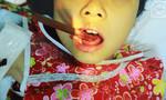 Bé gái bị đôi đũa xuyên thủng lưỡi trong lúc ăn cơm
