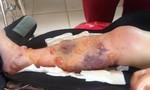 Đắk Lắk: Bác sĩ tắc trách, nữ sinh lớp 10 phải cưa một chân