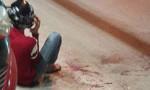 Thanh niên bị chém đứt tay ở Sài Gòn do mâu thuẫn tình cảm