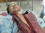 Một nhà dân ở Sài Gòn bị nhóm côn đồ hành hung dã man