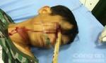 Người đàn ông bị cọc gỗ 1m đâm xuyên mắt