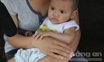 Bé gái 7 tháng tuổi thương tích đầy mình sau một ngày ở nhà trẻ