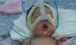 Bé gái sơ sinh bị tổn thương não, người nhà yêu cầu bồi thường 792 triệu đồng