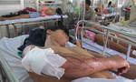 Hai nạn nhân bị giang hồ chém ở khoa cấp cứu được chuyển vào Chợ Rẫy