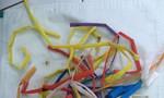 Gần 50 chiếc ống hút nằm xếp lớp trong dạ dày bệnh nhân