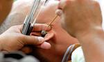 Rò dịch não tủy nhưng được chẩn đoán... viêm tai giữa mạn tính