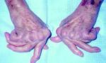 Ói ra máu sau khi uống 'thần dược' điều trị viêm khớp tại nhà