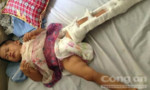 Tai nạn nghiêm trọng, hai vợ chồng tử vong để lại con nhỏ