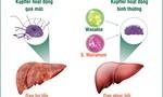 Đại phẫu viêm gan để phòng, trị hiệu quả