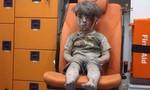 Cậu bé bị thương trong cuộc chiến Syria gây xúc động toàn cầu