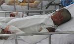 Nạn nhân bị người tình tưới xăng đốt giữa Sài Gòn đã tử vong