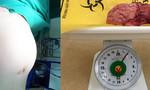 Hai giờ bóc tách khối u nặng 2kg trong tử cung một phụ nữ