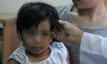 Bé gái 7 tuổi mắc bệnh 'công chúa tóc dài' kỳ quái, nghiện ăn tóc chính mình