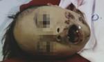 Bị xô té vào trụ xi măng, bé trai 9 tuổi bị biến dạng gương mặt