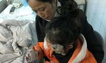 Con gái 5 tuổi bỏng nặng vì điện thoại của bố sạc ở đầu giường phát nổ