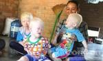 Ngôi làng của những đứa trẻ sợ ánh nắng