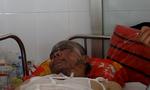 Những công nhân bị phỏng kim loại trên mặt, di chứng rất khó phục hồi