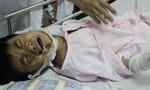 Xót xa bé trai 5 tuổi bị điện giật hoại tử 2 bàn tay, phỏng mặt và mắt cần giúp đỡ
