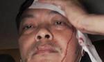 Giám đốc nhân sự cà phê Trung Nguyên bị đánh nhập viện