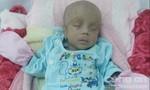 Bé sơ sinh nặng 1kg đối diện nguy cơ mù vĩnh viễn cần giúp đỡ
