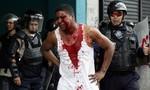 Biểu tình rầm rộ tại Venezuela khiến 3 người thiệt mạng