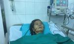 Cụ bà 75 tuổi bị bò đá gãy 8 xương sườn, tràn dịch màng phổi