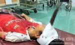Kinh hoàng bé trai 12 tuổi bị dao phay găm giữa trán