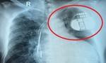 Người đàn ông 63 tuổi sống với chiếc máy tạo nhịp trong tim