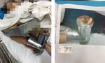 Người phụ nữ đau đớn nhập viện với bàn tay bị máy xay thịt nghiền nát