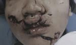 Bé gái 11 tuổi rách nát mặt vì ngã vào cửa kính ở trường học