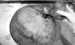 Mang khối u 4kg sau 4 năm uống lá thuốc điều trị tại nhà